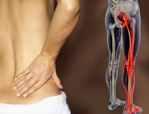 7 Practical Tips To Help You Beat Sciatica